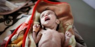 """اليمن: """"أطباء بلا حدود"""" تعلن عن فتح مستشفى """"المخا"""" بعد تعرضه لهجوم جوي"""