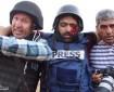 """نقابة الصحفيين تستنكر استهداف الاحتلال للمصور """"عمارنة"""" بالرصاص"""