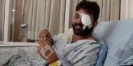 صورة.. معاذ عمارنة يغادر غرفة العمليات بعد استئصال عينه اليسرى