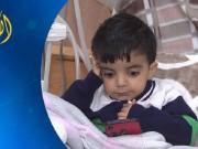 ثلاثة أطفال لعائلة واحدة مصابون بالفشل الكلوي والتليف الكبدي في غزة