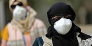 حالتا وفاة و683 إصابة جديدة بفيروس كورونا في الإمارات