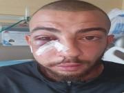 إصابة شاب بكسر في الوجه جراء اعتداء الاحتلال عليه شمال القدس