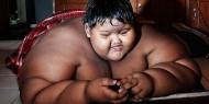 أسمن طفل في العالم يخسر 115 كيلو من وزنه