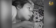 """خاص بالفيديو والصور   """"فجر شحيبر"""".. طفلة فلسطينية تناشد المسؤولين علاجها من مرض نادر"""