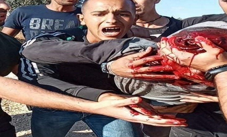 إصابة شاب بجراح خطيرة خلال مواجهات مع الاحتلال جنوب نابلس